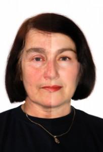 Botox / Dysport mod rynker